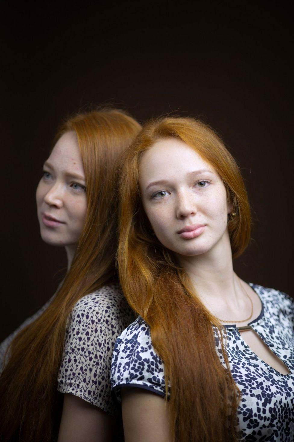 Tatiana e Valeria Korotaeva - Rússia - nascidas em 1998 e 1999